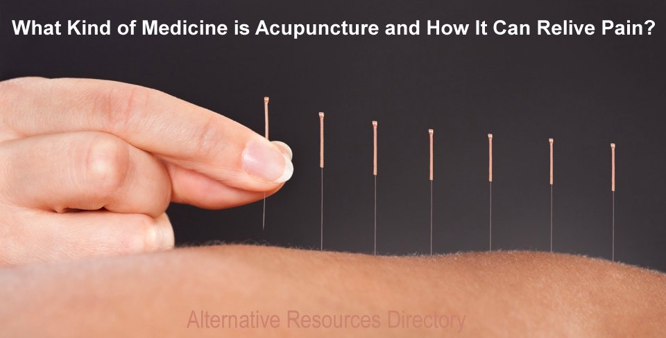 What kind of medicine is acupuncture and how it Can relive pain
