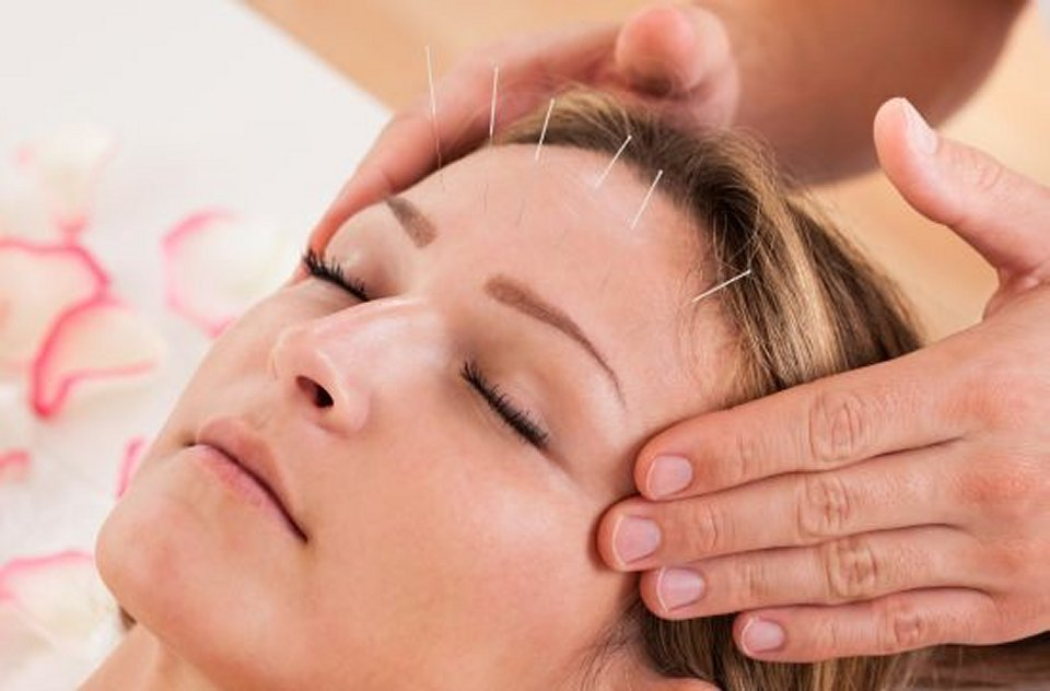 acupuncture ancient chinese healing method for stress and disease